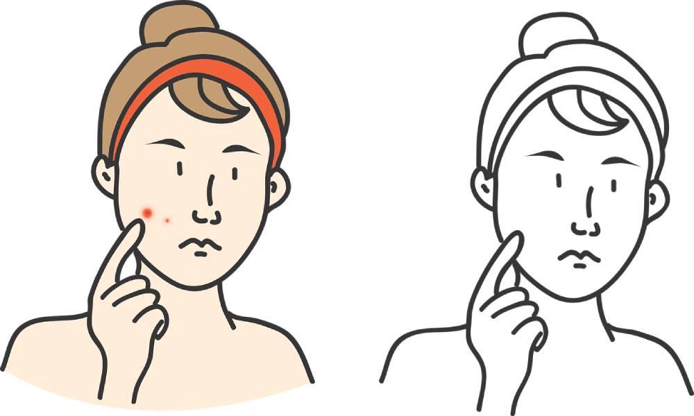 znaménko rakovina kůže